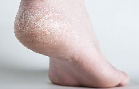 Cận cảnh móng chân bị rạn