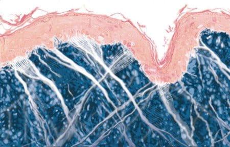 Giới thiệu sinh động về làn da già hơn với sự liên kết yếu giữa các lớp của da