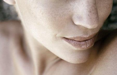 Phần dưới của gương mặt của người phụ nữ với các nốt tàn nhang