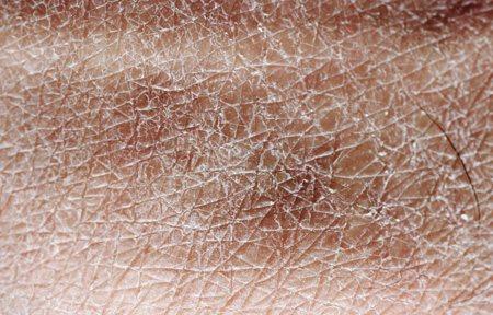 Cận cảnh làn da rất khô