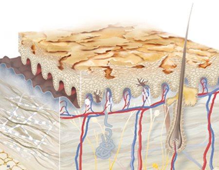 Hình minh họa về da khô