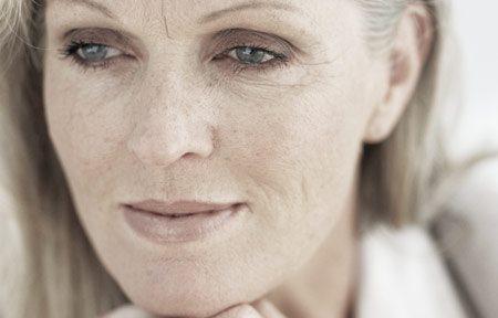 Phụ nữ với nhiều tàn nhang và các đốm da lão hóa