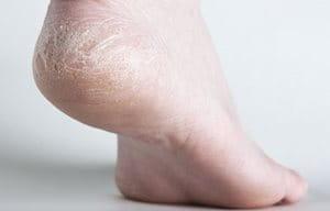 móng chân bị rạn