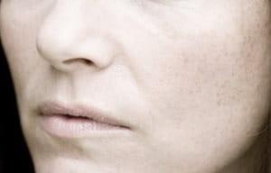 Hình ảnh gương mặt người phụ nữ nhìn có vẻ hơi đỏ và có nhiều nếp